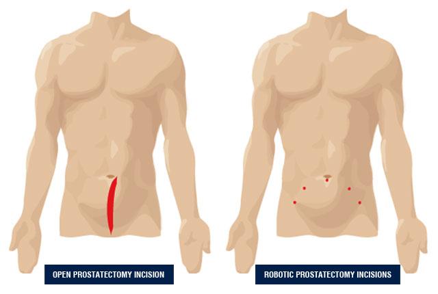 Robotic Prostatectomy Tooele Urology